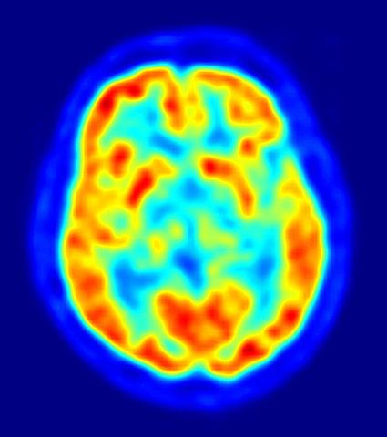 Ilustrasi, Penggambaran otak menggunakan PET.