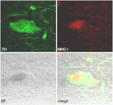 Empat gambar neuron dari otak manusia menunjukkan bahwa neuron menghasilkan protein (merah), dimana protein ini memicu sel imun untuk menyerang neuron (hijau). (Credit: Image: Carolina Cebrian)