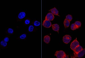 Kiri, sel-sel sehat dengan reseptor glukosa yang sedikit. Kanan, sel-sel tumor dengan glukosa dalam reseptor merah dengan jumlah yang banyak. (Credit: Image courtesy of IDIBELL-Bellvitge Biomedical Research Institute)