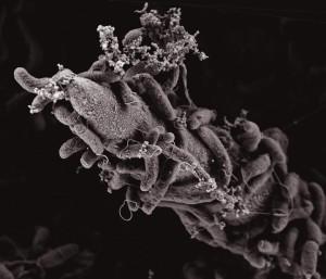 Electron scanning microscopy menunjukkan bakteri Vibrio cholerae melekat pada permukaan kitin. (Credit: Graham Knott & Melanie Blokesch/EPFL)