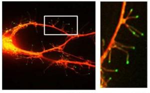 filopodia, neuron