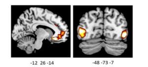 pencitraan otak, variasi genetik