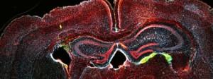 sel darah, saraf, otak