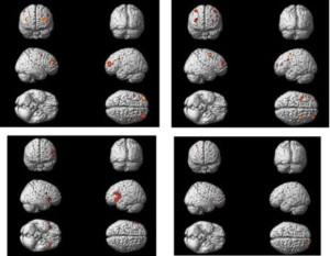 aktivitas otak, MRI