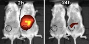 nanopartikel, fluoresensi, kanker