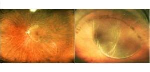 retina, sel fotoreseptor