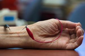 akupunktur, hipertensi