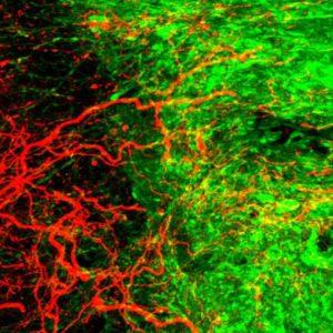 Akson saluran kortikospinalis, implan sel punca, stem cell, tulang belakang
